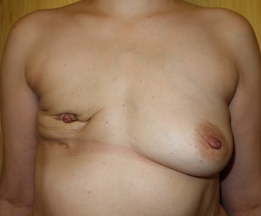 Before - after mastectomy / implant loss and radiotherapy